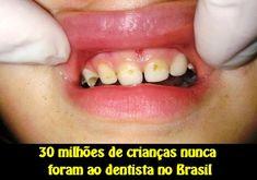 30 milhões de crianças nunca foram ao dentista no Brasil | OVI Dental