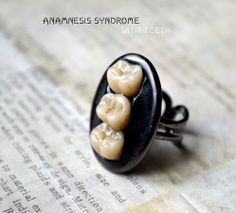 A new one! Black Ring with human molars (in resin) · Verope's Anamnesis Syndrome · Online Store Powered by Storenvy