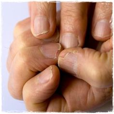 Natural treatments for strong and healthy nails | Inspire Beauty Tips