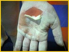 gymnastics injury-care for rips