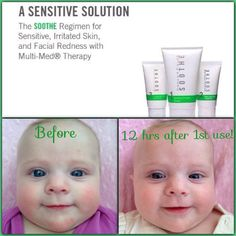 Genevieve has #baby #eczema...Rodan + Fields Soothe regimen cleared her skin after one application!! Message me to find out more!!