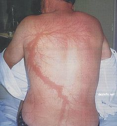 Not to dump on the victim, but go inside, man! (A man's back with lightning injuries that look like flower or tree branches)