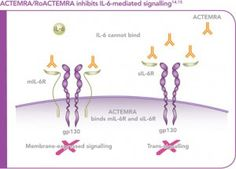 Self-injectable Tocilizumab was approved by the EU late April 2014 to specifically treat adult patients with moderate or severe Rheumatoid arthritis (RA) who have failed to respond to other medications or who are intolerant to prior treatments. RoACTEMRA is the 1st and only anti IL-6 receptor biologic offered as both an IV treatment and a subcutaneous injection to be used alone or in combination with Methotrexate. The approval was based on two Phase 3 trials coined BREVACTA and SUMMACTA.