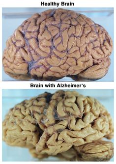 Alzheimer's disease affects the human brain in a way that the person starts losing his memory, his power to think, and his natural behavior. Alzheimer's Treatment, Healthy Brain, Brain Health, Alzheimer's And Dementia, Med School, Anatomy And Physiology, Human Anatomy, Neuroscience, Nursing