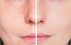 Mit dieser einfachen Tomatenbehandlung wird deine Haut gestrafft, geschmeidig…