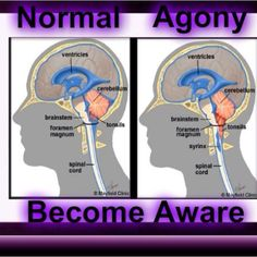 The slight differences between a normal brain and one that causes the person to be in pure agony.