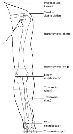 Amputee nomenclature by level of upper extremity