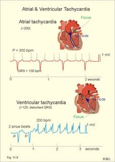 Left - atrial tachycardia (QRS 100 bpm);  and right - ventricular tachycardia (QRS 200 bpm) following 2 sinus beats.