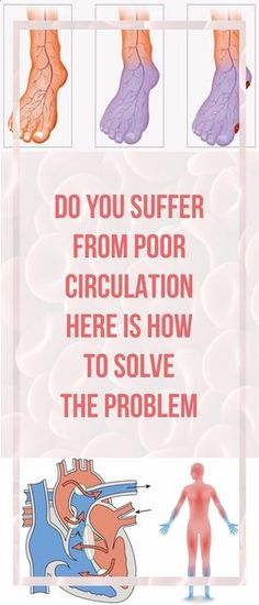 DO YOU SUFFER FROM POOR CIRCULATION? HERE'S HOW TO SOLVE THE PROBLEM