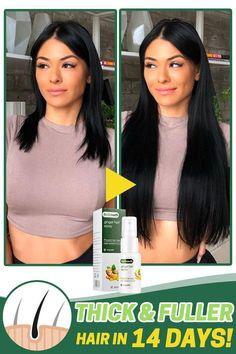 Natural Hair Care, Natural Hair Styles, Brittle Hair, Ginger Hair, Hair Growth, Growth Oil, Fuller Hair, Hair Health, Great Hair