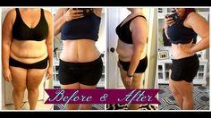 Tummy Tuck Update | 12 weeks Postop | Video #5