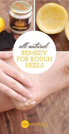 This simple home remedy is a natural way to get smooth, soft, and healthy heels before sandal-wearing season arrives!