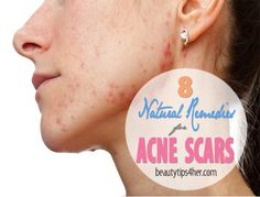 8 Effective Home Remedies for Acne Scars Beauty and MakeUp Tips Cystic Acne Remedies, Natural Acne Remedies, Home Remedies For Acne, Acne Skin, Acne Scars, Acne Scar Removal, Sagging Skin, How To Treat Acne, Tips Belleza