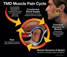 If you are suffering from undiagnosed, chronic pain, TMJ may be the reason. TMJ or Temporomandibular joint is responsible for many jaw functions, like chewing food, talking. Muscle Fatigue, Muscle Pain, Health Facts, Oral Health, Zoom Teeth Whitening, Jaw Pain, Neck Pain, Craniosacral Therapy, Massage Therapy