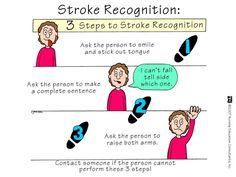 Stroke - Nursing Mnemonics. See more: http://www.nursebuff.com/2014/06/nursing-mnemonics/