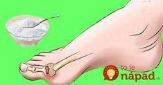 Vyliečiť dnu úplne keď sa raz objaví je bohužiaľ nemožné. Skôr môžeme hovoriť o zmierňovaní príznakov tejto choroby, spôsobenou usádzaním kryštálikov kyseliny močovej v kĺboch. Pri dne sa však veľmi dobre dajú zmierniť bolestivé príznaky Beauty Detox, Gout, Dena, Reflexology, Feet Care, Organic Beauty, Diabetes, Life Is Good, Healthy Lifestyle