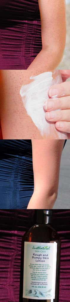 Home Remedies for Keratosis Pilaris (Bumps on the Skin ...