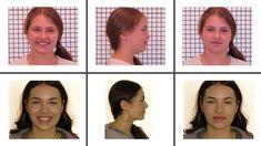 Hier das Gesicht zu unserem letzten Fall! Toll oder? Durch das Training von Lippenschluss, Nasenatmung und richtiger Zungenlage hat sich auch das Gesicht so positiv entwickelt.