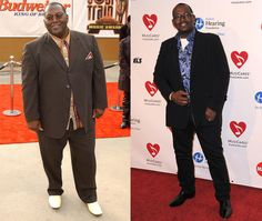Celebrities With Weight Loss Surgery