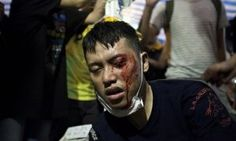 Cool Medical news 2017: Hong Kong protesters must be cleared by Monday, chief executive says | World new...  Occupy Central civil disobedience movement