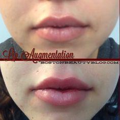 restylane lips - Google Search