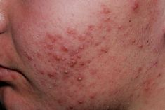 Acne Vulgaris - Acne vulgaris is a common human skin disease, characterized by areas of seborrhoea, comedones, papules, nodules, pimples and possible scarring.
