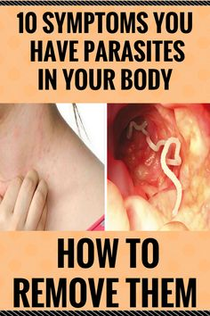 10 SYMPTOMS YOU HAVE PARASITES IN YOUR BODY (AND HOW TO REMOVE THEM)  ,