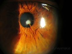 This persons iris started growing into the lens of the eye Wtf Moments, Weird Pictures, Iris, Science, In This Moment, Odd Stuff, Eye, Irises, Science Comics
