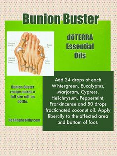 Got a bunion?? Try this Bunion Buster recipe! Removed a bunion in one month! Not chemicals! No Surgery! No side effects!