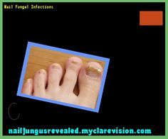 Nail fungal infections - Nail Fungus Remedy. You have nothing to lose! Visit Site Now