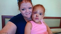 Wounded: AvaLynn and mother Lacey Harris pose for a picture posted over the weekend that show the five-year-old's injuries are improving