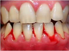 FOW 24 NEWS: Gingivitis; Causes And Symptoms---On Fow24news.com...
