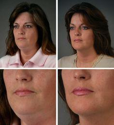 Best facial moisturizer mature skin