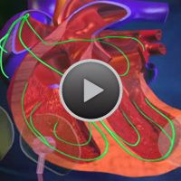 What happens in the heart during atrial fibrillation?
