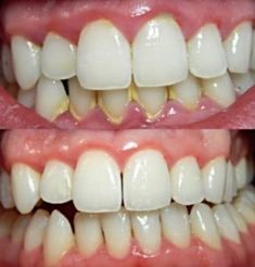 The dentist getting wisdom teeth pulled,cure tooth decay dental caries symptoms,dhs dental practice basic teeth cleaning cost. Gum Health, Dental Health, Oral Health, Dental Care, Smile Dental, Smile Teeth, Oil Pulling, Gum Disease Treatment, How To Prevent Cavities