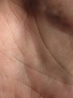 Texture of skin on the hand.