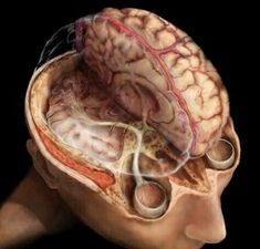 Superior view of the brain revealing the visual pathway and superior sagittal sinus. Electrical nerve impulses travel from the eyes to the occipital lobe in the back of the brain via millions of nerves fibers that make up the visual pathway. Brain Science, Medical Science, Occipital Lobe, Eye Anatomy, Anatomy Art, Craniosacral Therapy, Human Anatomy And Physiology, Human Brain Anatomy, Student Nurse