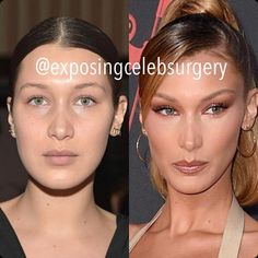 Why celebrities like Bella Hadid, Ariana Grande, and Kylie Jenner are suspected of having Botox brow lifts. Botox Brow Lift, Cosmetic Procedures, Bella Hadid, Kylie Jenner, Ariana Grande, Eyebrows, Makeup Looks, Most Beautiful, Eyes