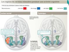 L'imagerie du cerveau dévoile les secrets de la dyslexie | Actualité | LeFigaro.fr - Santé Autism Sensory, Learn Chinese, Adhd, Counseling, Teaching, Education, Spy, Dyslexia, Corona