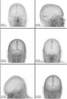 a study of brain death in america Alzheimer's is the sixth leading cause of death in the united states some of the most remarkable progress has shed light on how alzheimer's affects the brain.