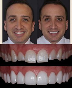 Before and after of no drill lumineers/lumineers. Simply placing Porcelain over the front of the teeth with no injections or pain. Dr. Andrew keller, Dr. Beau Keller of Da Vinci Dental located in Bellevue Washington. Dentistinbellevue.com