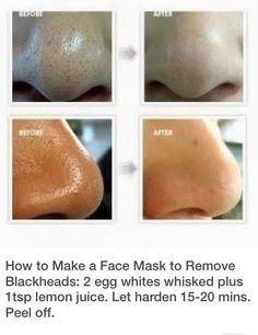 Blackhead removal facial mask DIY