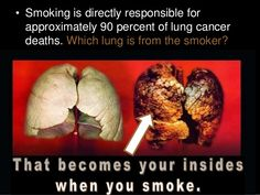 tobacco smoking causes lung cancer deaths http://onlinemedical.org/cigarettes-why-people-smoke-smoking-shortens-life/