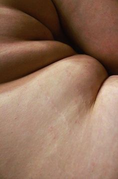 15 Reasons To Love Your Stretch Marks and Embrace Them As Your Body's Natural Accessories