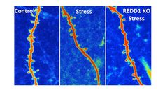 Neurobiologists Block the Effects of Stress