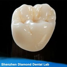 Cosmetic Dentistry NYC offers best treatment plan for dental crowns and dental bridges. Call at to schedule a consultation to find out if crowns and bridges are right for you. Dental Art, Dental Teeth, Teeth Implants, Dental Implants, Dental Hygienist, Dental Bridge Cost, Dental Anatomy, Dental Technician, Dental Cosmetics