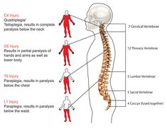 injury quadriplegia tetraplegia results complete anatomy and physiology of the spine paralysis below the neck partial chest waist vertebrae lumbar Spinal Cord Injury Levels, Thoracic Vertebrae, Human Body Facts, Body Diagram, Reflexology Massage, Nursing Notes, Physical Therapy, Occupational Therapy, Physiology
