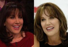 Robin Mcgraw Plastic Surgery Before and After Pictures