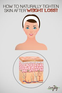 How To Naturally Tighten Skin After Weight Loss