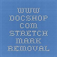 www.docshop.com  Stretch Mark Removal